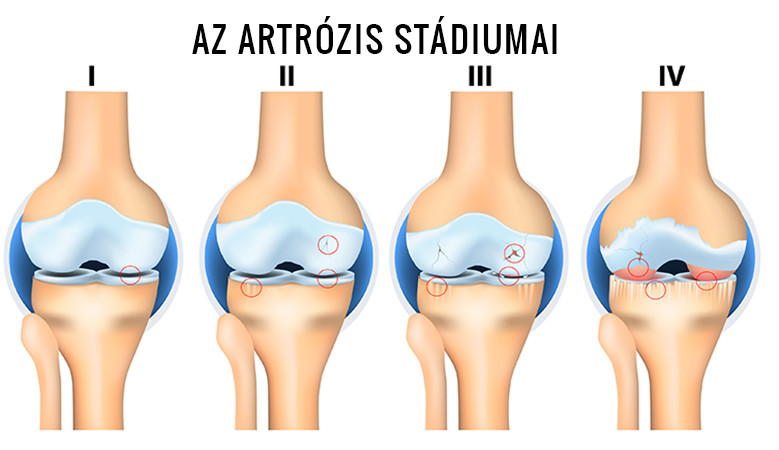csípő artrózisa és kezelése