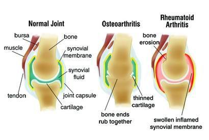 az artrózis kezelés tünetei mélyvénás gyulladás a térdízületben