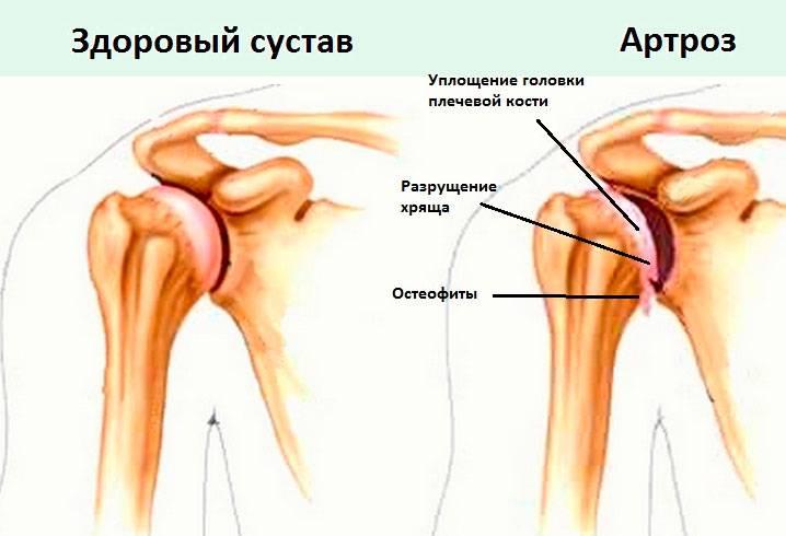 tanácsot ad a vállízület fájdalmáról)