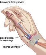 Hogyan kerüljük el a bicepsz sérüléseit? - Gerinces Magazin