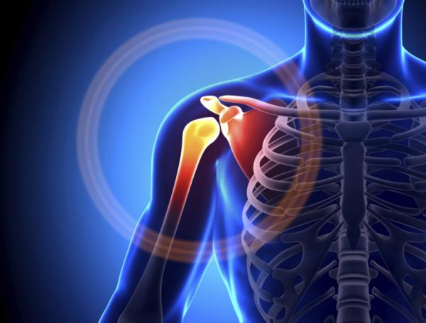 a vállízület ízületeinek gyulladása a lábak és ízületek fájdalmáról