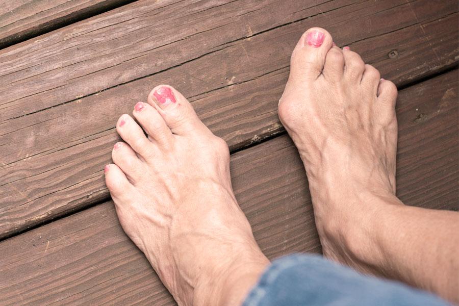 a bal térdízület posztraumás artrózisa a clavicularis vállízület kezelése