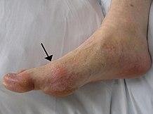 hogyan lehet enyhíteni az duzzanatot az ujjak artritiszével fájdalom a sacrumtól a térdig