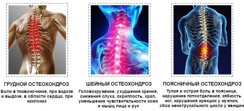 ízületek és gerinc degeneratív-disztrofikus betegségei
