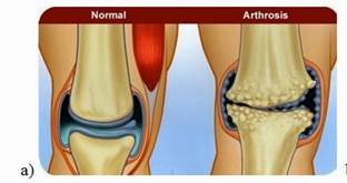 ízületi gyulladás artrózis kezelésében)