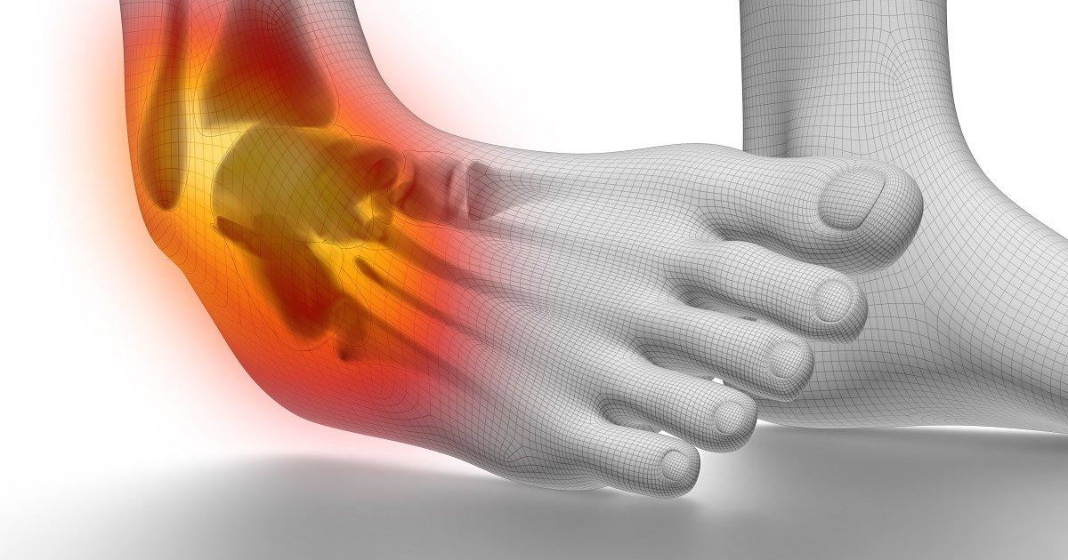 súlyos ízületi fájdalom és duzzanat az ágyéki artrózis kezelése