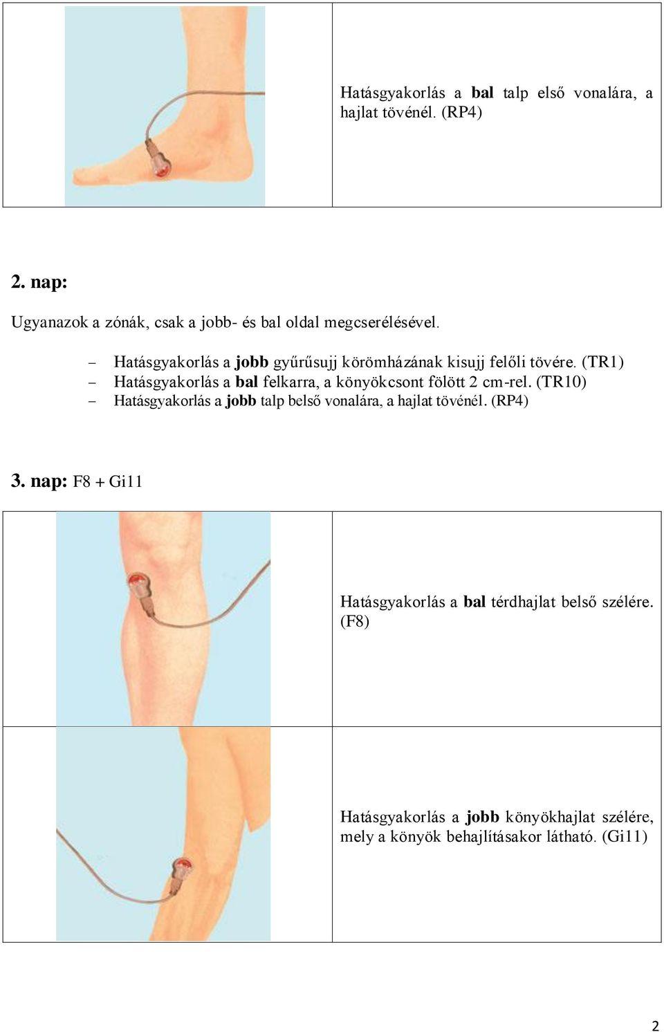 A boka ízülete: okai és kezelése - Talpbetét
