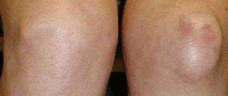 a térd deformáló artrózisa 3 fok