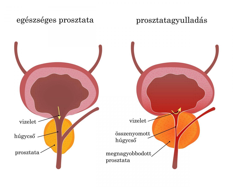 a csípőízület ülőidegének gyulladása)