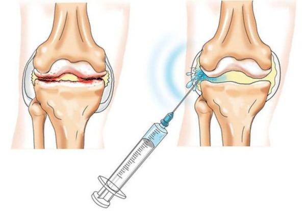 A hüvelykujj környékén lévő csont sérül - az okok és a kezelés