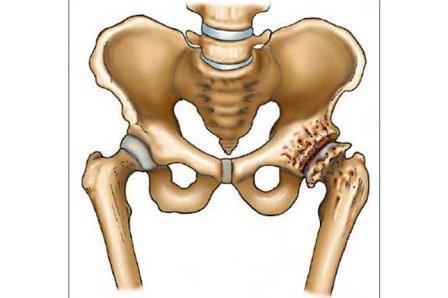 első csípőízületi tünetek