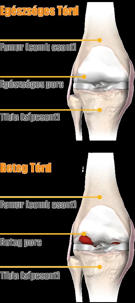 térdízület artrózisos kezelése