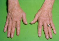 a kéz duzzanata ízületi gyulladással)