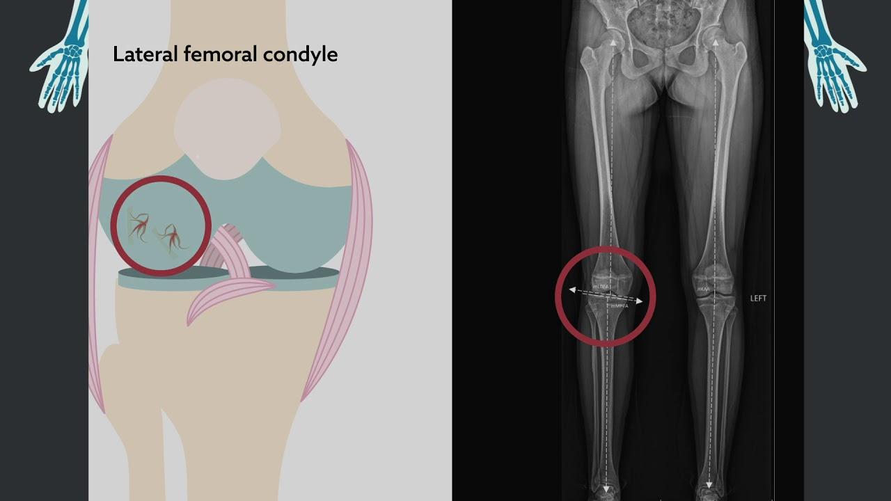 Osteochondrosis, Dr. Diag - Osteochondrosis dissecans genu