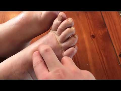 a lábak és a lábak ízületeinek duzzanata
