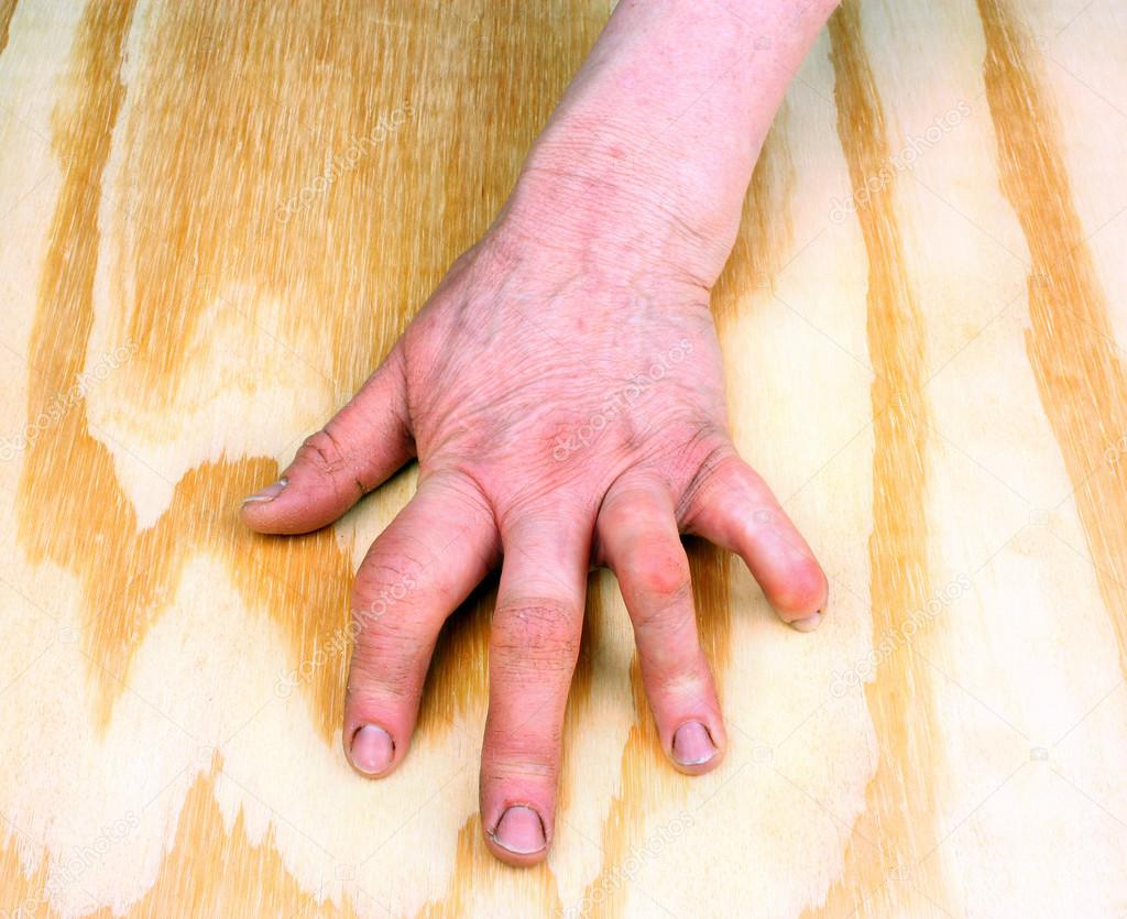 rheumatoid arthritis 3 fokos kéz)