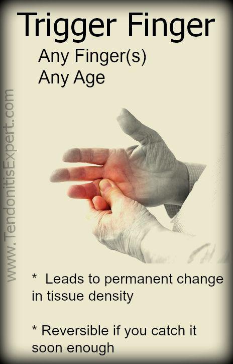 posztraumás ujj artritisz ízületi sérülések jelentése