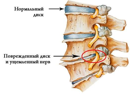 csípőízület dysplasztikus artrózisa
