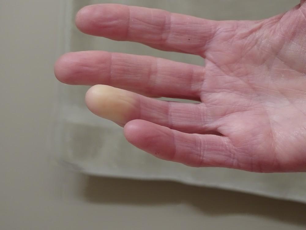 a kötőszövet szisztémás betegségeinek kezelése