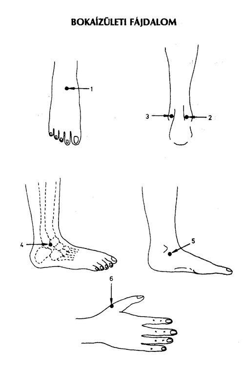 bokaízületi fájdalom kezelése)