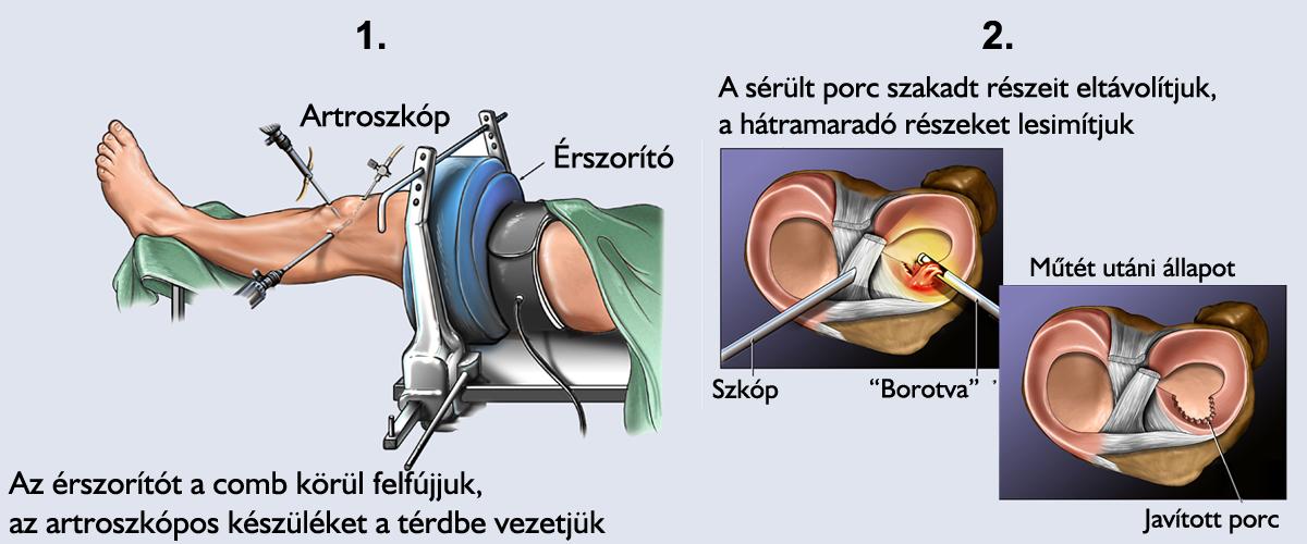 a térd tünetek meniszkuszának károsodása