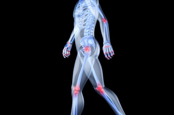 az osteokondrozis gyógyszereinek felsorolása