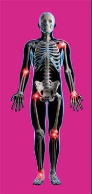 csípőízületi fájdalom az elhúzódó ülés miatt hideg az artrózis kezelésében