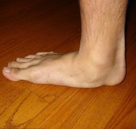 a sérülések és a bokaízület sérüléseinek etiológiája