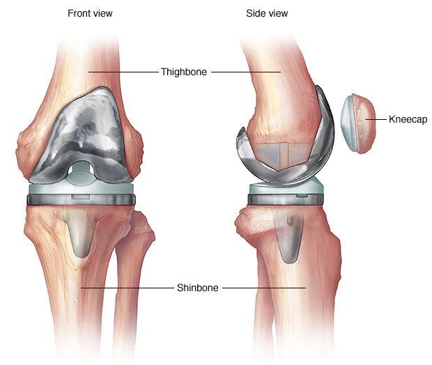 hogyan kell kezelni a térdízületet az osteoarthritis ortopédiai kezelése