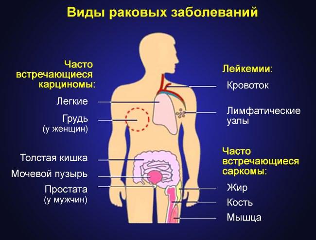 csípőfájdalom nőkben)