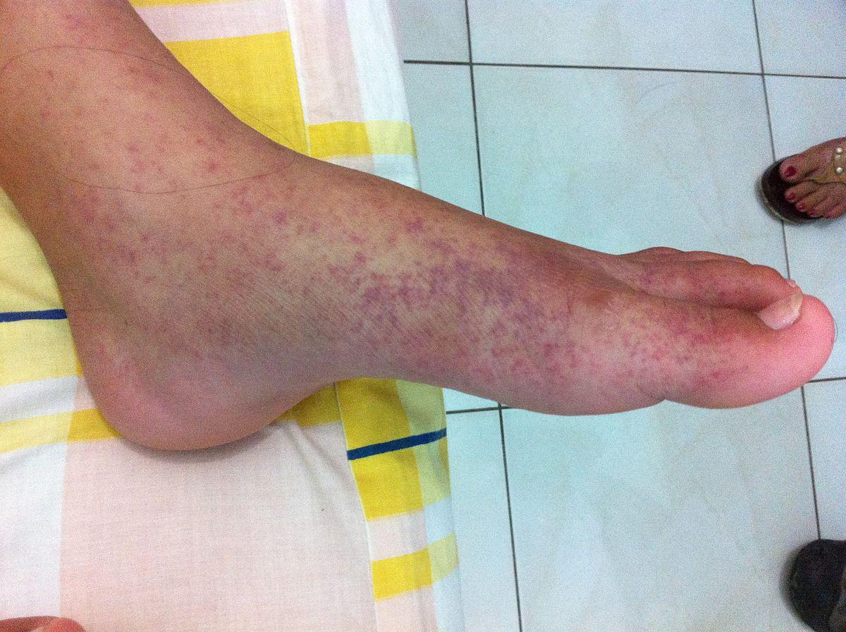 a lábak ízületeinek betegségei 70 év alatt)