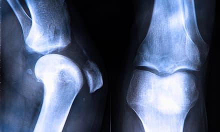 hogyan lehet eltávolítani az ödémát a bokaízület artritiszével fájdalom az ujjain