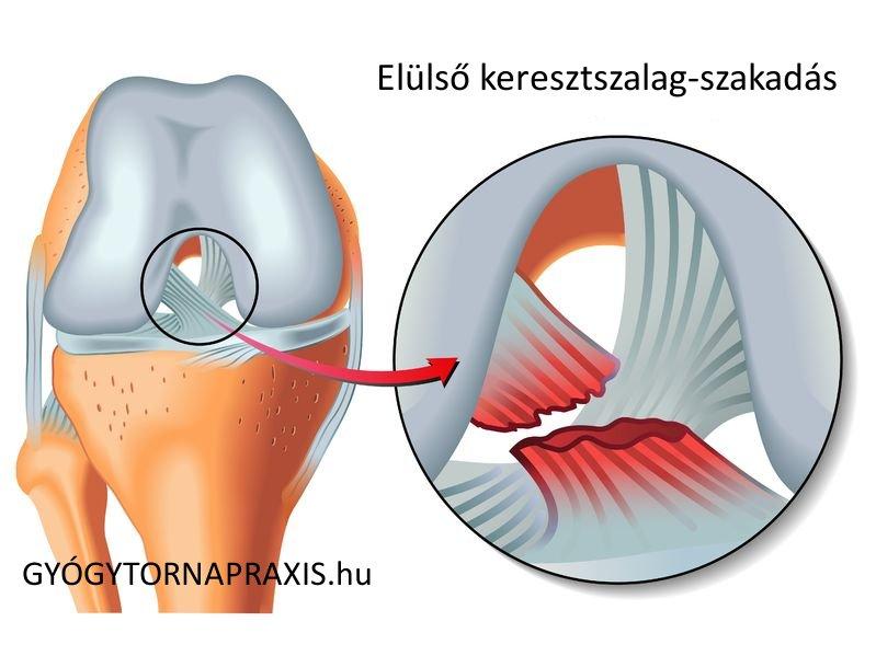 a térd csontosodásának kezelése dagadt térd kezelése házilag