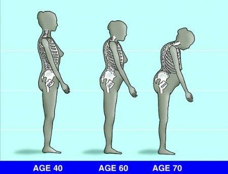a csontritkulás tünetei)