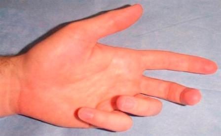 boka ínszalagok sérüléseinek kezelése