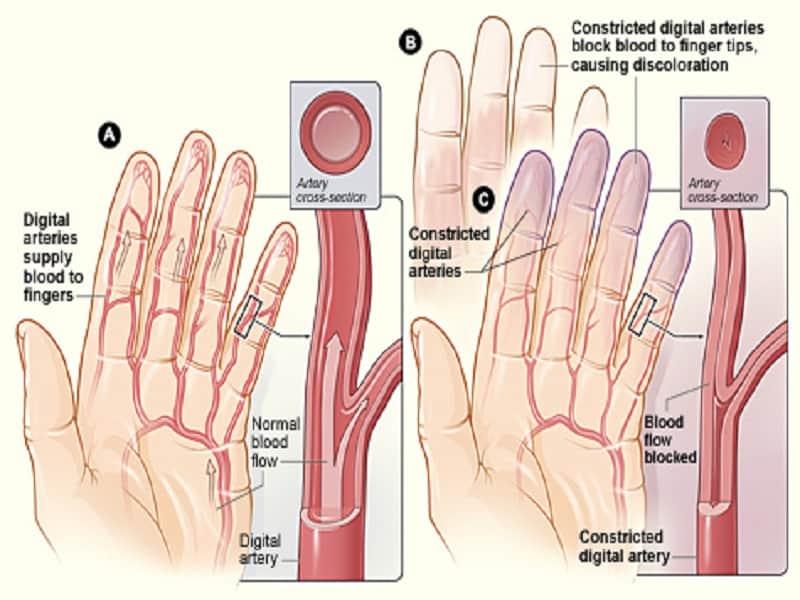 Súlyos fizikai erőfeszítés prosztatagyulladással