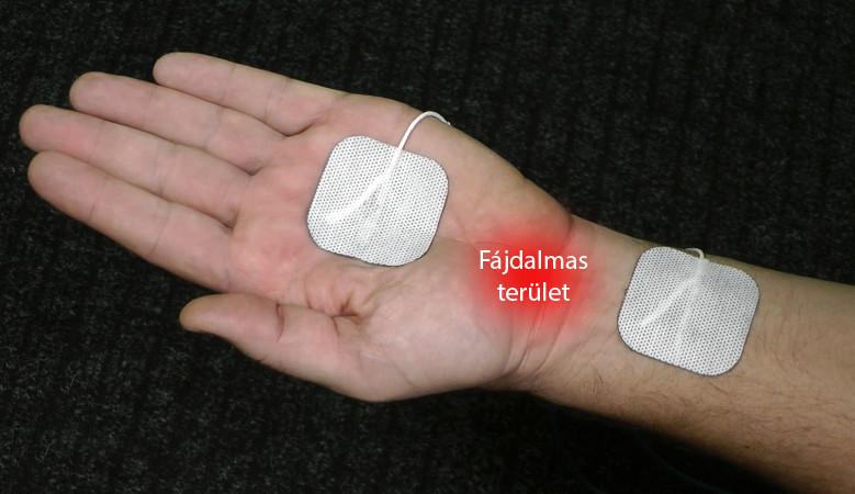 térdízületi kezelés artritisz súlyosbodása