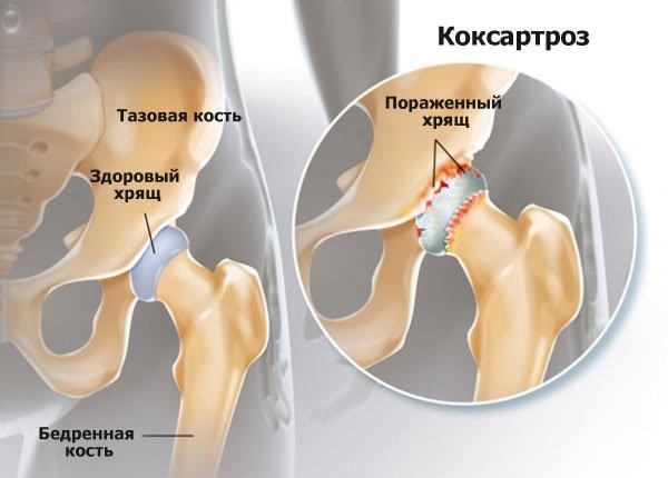 a bokaízület deformáló artrózisa fut)