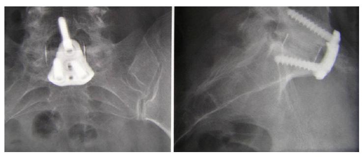 a gerinc osteoarthritisének műtéti kezelése)