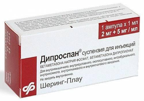 3 hatékony injekciós kezelés porckopásnál