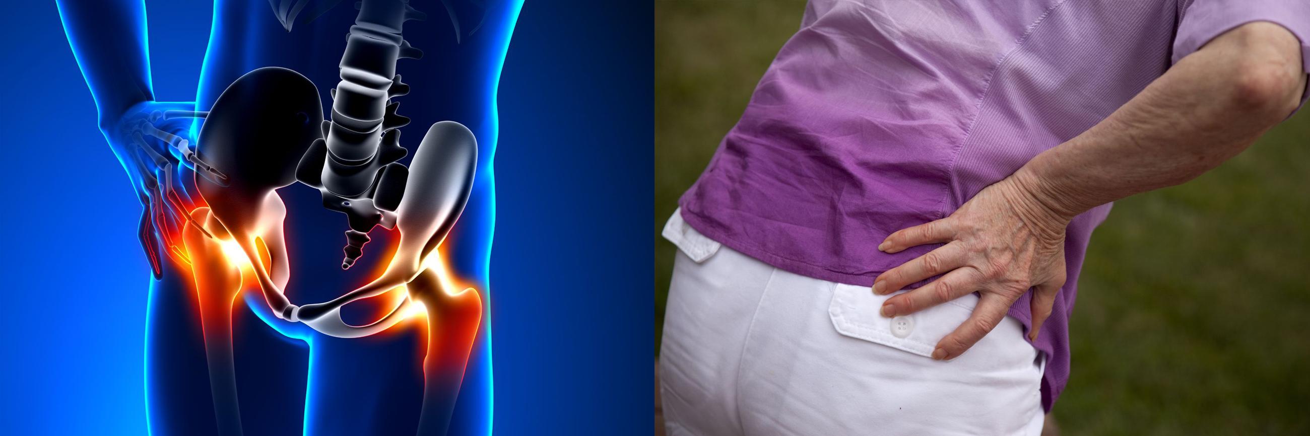 fájdalom a csípőízületben futás után ujjízületi tünetek és kezelés