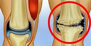 a jobb térd artrózisa kezelés