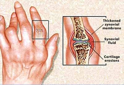 a kezek rheumatoid arthritisének kezelése