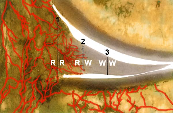 a kürt térdízületének meniszkuszának károsodása