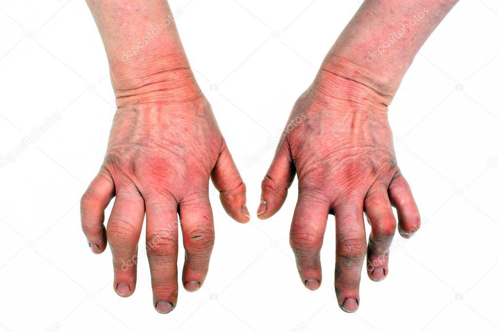 a kéz kenőcsének rheumatoid arthritis