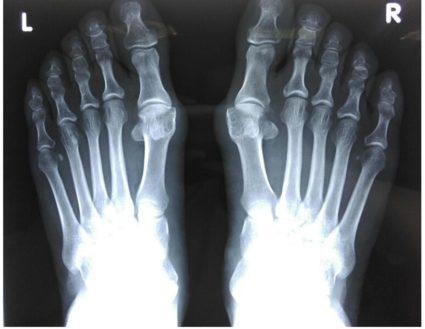 a lábujj ízületének artrózisából)