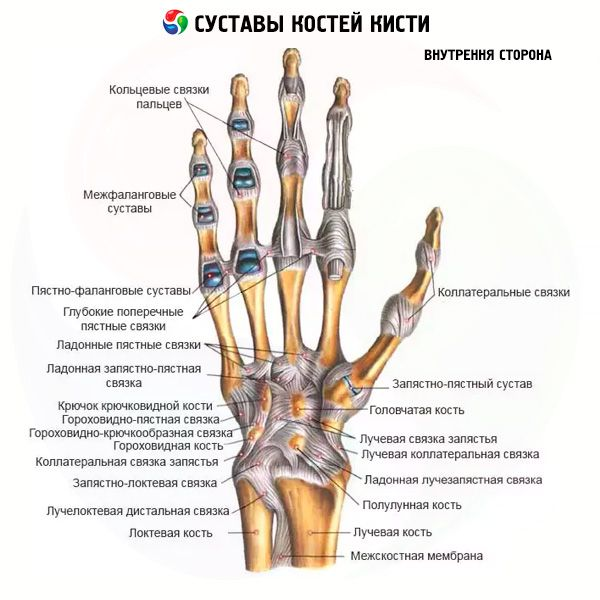 a metacarpalis ízület fáj)