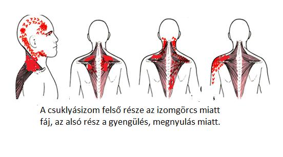 a nyaki ízület fáj)