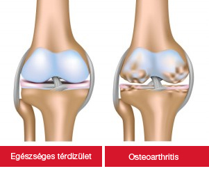 a térd artrózisának okai