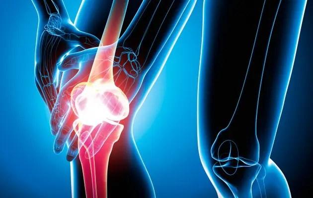 a térd gonartrosisának 4 fokos kezelése